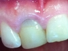 Gum lift & crowns